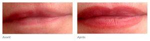 Maquillage permanent bouche avant après marwel