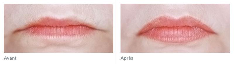 Maquillage permanent bouche avant après uris