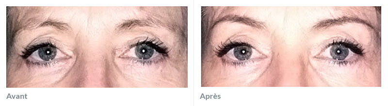 Maquillage permanent sourcils avant après 2