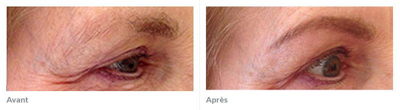 Maquillage permanent sourcils avant après 3