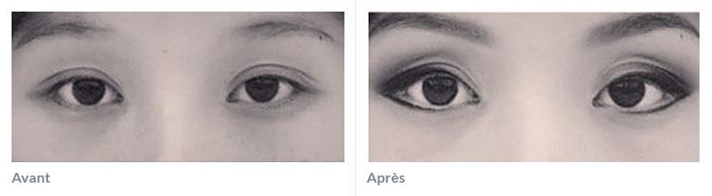 Maquillage permanent yeux avant après 1