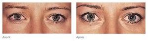 Maquillage permanent yeux avant après 2