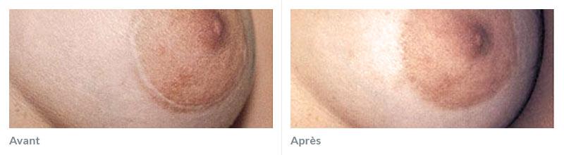Maquillage réparateur avant après 1