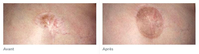 Maquillage réparateur avant après 2