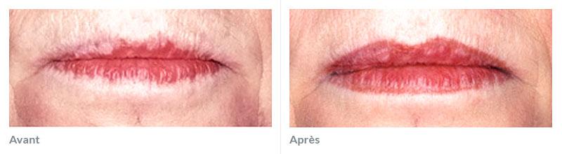 Maquillage réparateur avant après 3