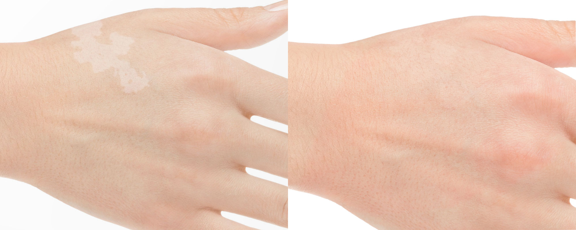 Maquillage réparateur avant après